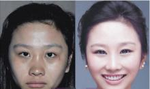 Korean plastic surgery center: Izien Plastic Surgery