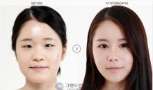 Korean plastic surgery center: Grand Plastic Surgery