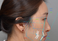 Plastic surgery in Korea- Orthognathic surgery: 4D balance two jaw surgery
