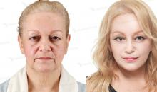 Plastic surgery in Korea-Facelift surgery: Aqua lifting
