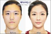 Korean plastic surgery center: Faceline Plastic Surgery Clinic