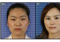 Korean plastic surgery center: BK Plastic Surgery Medical Group