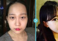 Korean plastic surgery center: Marble Plastic Surgery