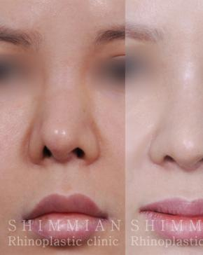 Korean plastic surgery center: Shimmian Rhinoplastic Clinic