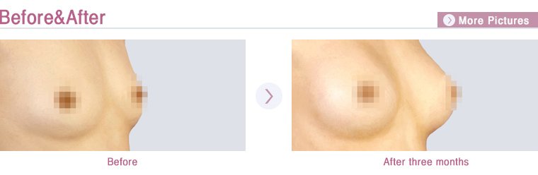 Korea Plastic Surgery Teardrop Implant Breast Surgery Korean