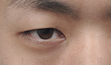 Best surgeons for eyelid surgery