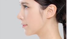 Plastic surgery in Korea-Doll line rhinoplasty surgery
