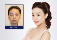 Before And After Plastic Surgery Gallery, Impressive Results