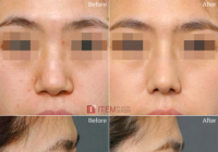 Rhinoplasty Before And After Changes