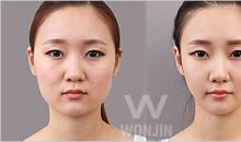 Price of square jaw reduction