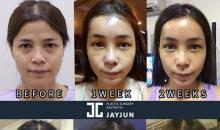 What is price of facelift?