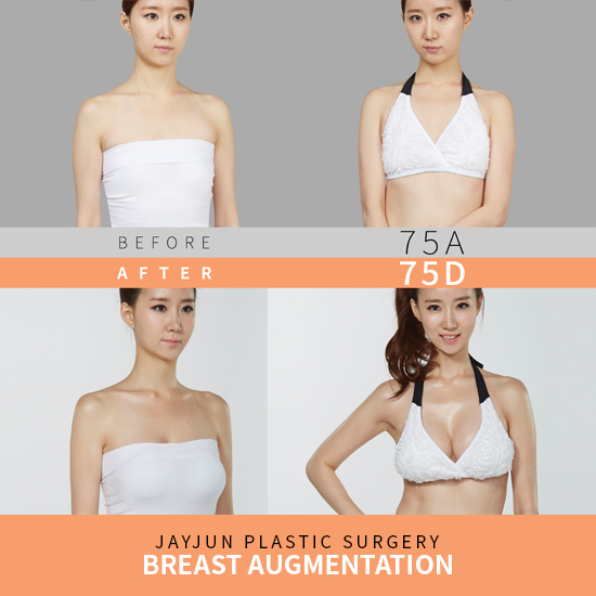 f4cce830a6 Plastic surgery in Korea- breast implant surgery - Korean plastic ...