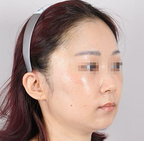 Korean plastic surgery center: Idea Clinic