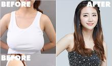Breast reduction cost