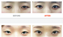 Korean plastic surgery center: Forever