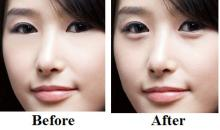 Plastic surgery in Korea- Lower eyelid surgery