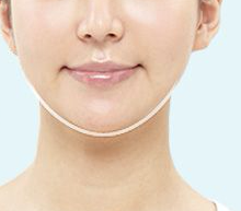 Plastic Surgery In Korea - Mini V-line Surgery