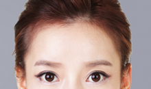 Plastic Surgery In Korea - Square Jaw Surgery