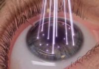 Korean Plastic Surgery: Eye Laser