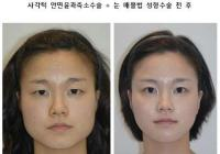 Korean plastic surgery: Mandible reduction