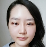 Korean Plastic Surgery: Swollen Eyelid