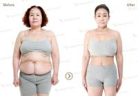 Korean plastic surgery: Tummy tuck Liposuction