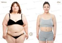 Korean plastic surgery: Whole body Liposuction