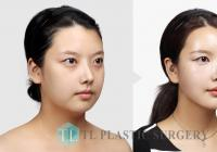 Korean Plastic Surgery: Buccal fat removal