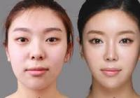 Korean Plastic Surgery: Nose job