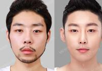 Korean Plastic Surgery: Nostril reduction