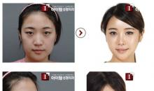 Korean Plastic Surgery: Hairline reduction.