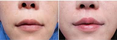 Korean Plastic Surgery: Philtrum surgery