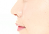 Korean Plastic Surgery: Rhinoplasty Materials