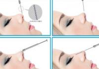 Korean Plastic Surgery: Non incision rhinoplasty