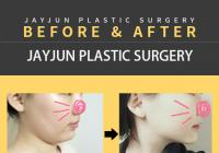Korean Plastic Surgery: Venus Laser