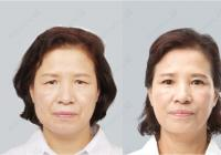 Korean Plastic Surgery: First lady facelift
