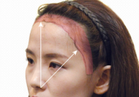 Korean Plastic Surgery: Hairline