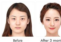 Price of cheekbone reduction