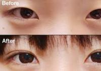 Double eyelid surgery fee
