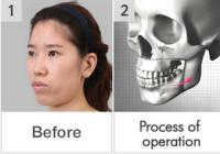 Price of lower jaw surgery