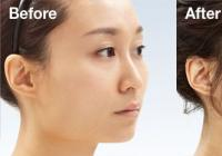 Price of nose fillers