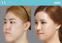 Price of orthognathic surgery