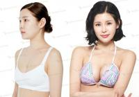 Breast surgery cost