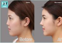 Cost of short nose augmentation