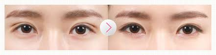Price of double eyelid revision surgery