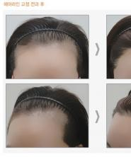 Price of hairline correction