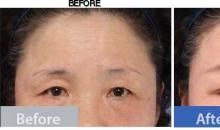 Price of lower eyelid revision surgery