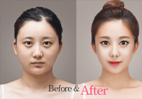 Best Korean plastic surgery clinic
