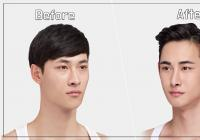 Best plastic surgery for men