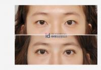 Best double eyelid plastic surgery